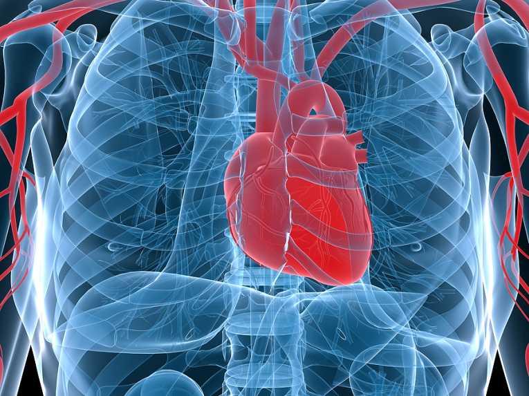 arthritis-sufferers-higher-heart-disease-risk_168